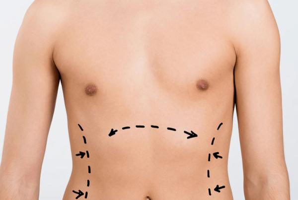 عملية شفط الدهون بالفيزر