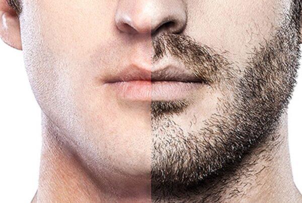 زراعة شعر اللحية أو الدقن والشنب